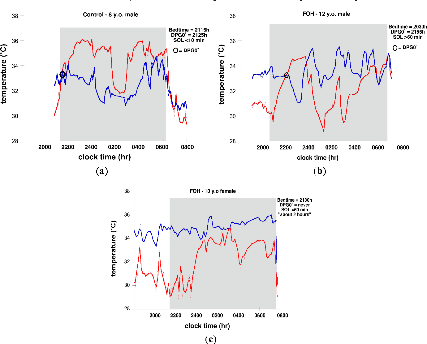 Figure 2 from Alterations in skin temperature and sleep in