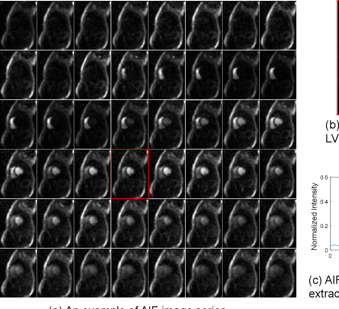 Figure 1 for Automated Detection of Left Ventricle in Arterial Input Function Images for Inline Perfusion Mapping using Deep Learning: A study of 15,000 Patients