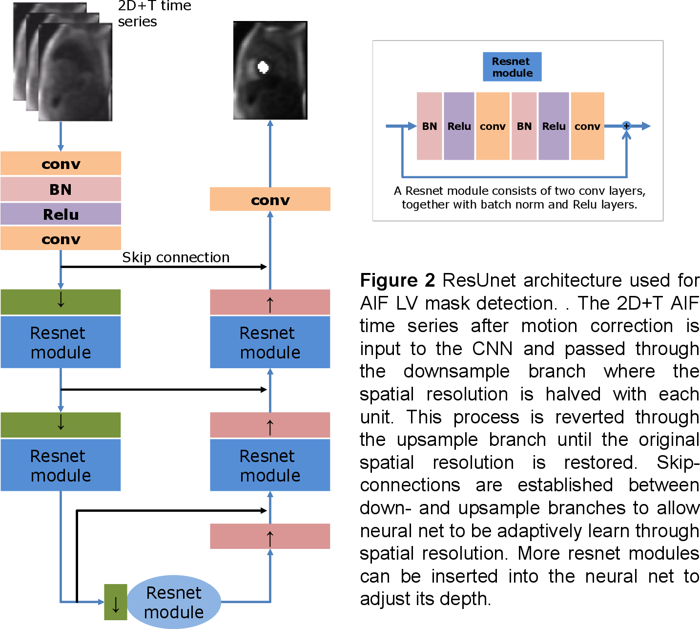 Figure 2 for Automated Detection of Left Ventricle in Arterial Input Function Images for Inline Perfusion Mapping using Deep Learning: A study of 15,000 Patients