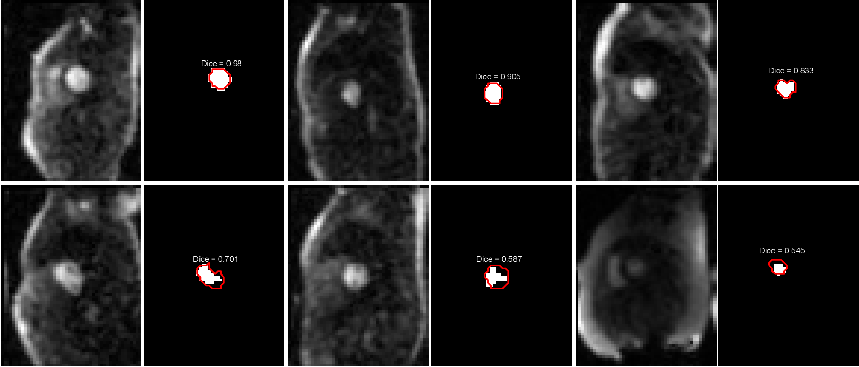 Figure 3 for Automated Detection of Left Ventricle in Arterial Input Function Images for Inline Perfusion Mapping using Deep Learning: A study of 15,000 Patients