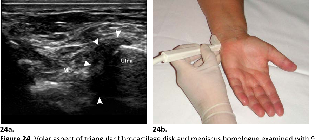 Us Of The Intrinsic And Extrinsic Wrist Ligaments And Triangular