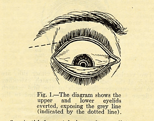 Fig. 1.?The diagram shows the upper and lower eyelids everted, exposing the grey line (indicated by the dotted line).