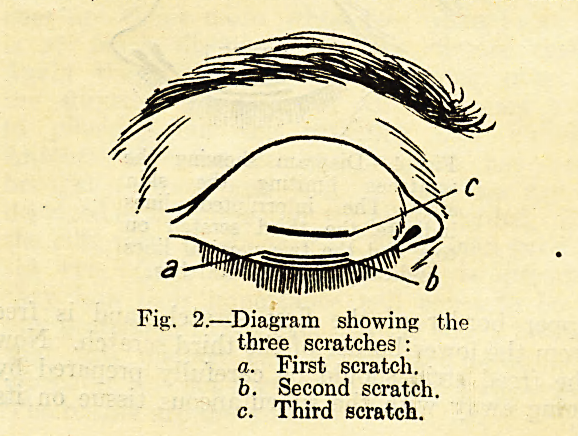 Fig. 2.?Diagram showing the three scratches :