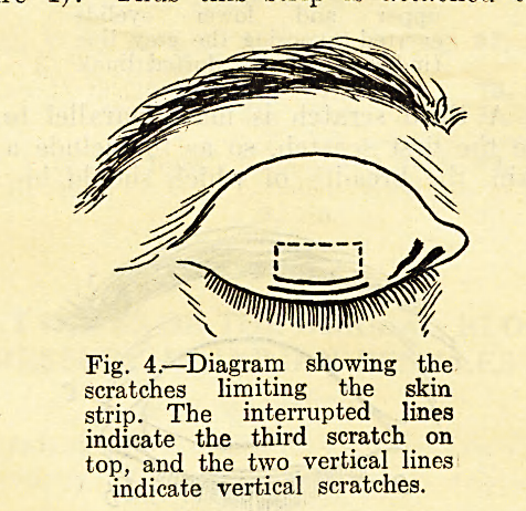 Fig. 4.?Diagram showing the scratches limiting the skin strip. The interrupted lines indicate the third scratch on top, and the two vertical lines indicate vertical scratches.