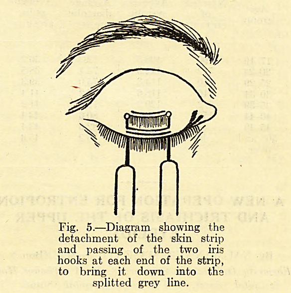 Fig. 5.?Diagram showing the detachment of the skin strip and passing of the two iris hooks at each end of the strip, to bring it down into the splitted grey line.