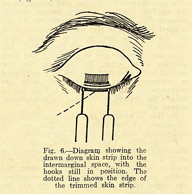 Fig. 6.?Diagram showing the drawn down skin strip into the intermarginal space, with the hooks still in position. The dotted line shows the edge of the trimmed skin strip.