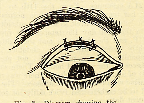 Fig. 7.?Diagram showing the three sutures placed on the splitted grey line containing now the skin strip between its lips.