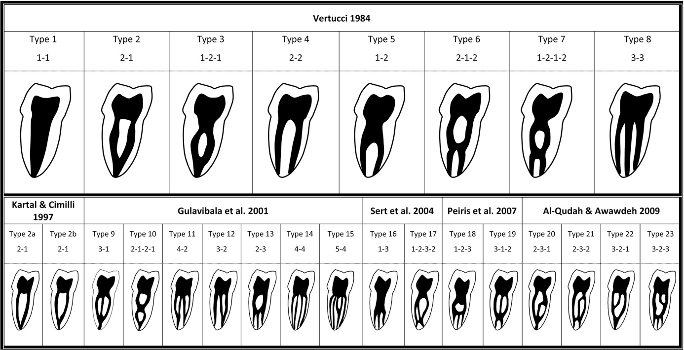 Root anatomy and canal configuration of the permanent mandibular ...