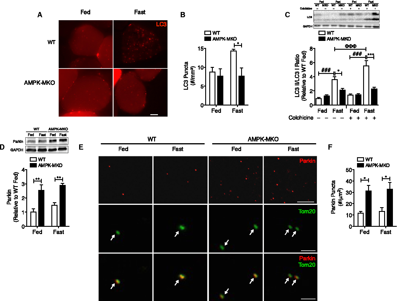 AMPK activation of muscle autophagy prevents fasting-induced