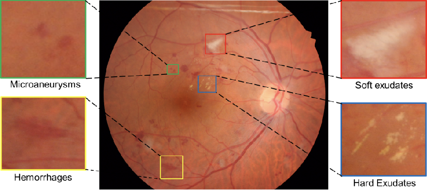 Figure 1 for Improving Lesion Segmentation for Diabetic Retinopathy using Adversarial Learning