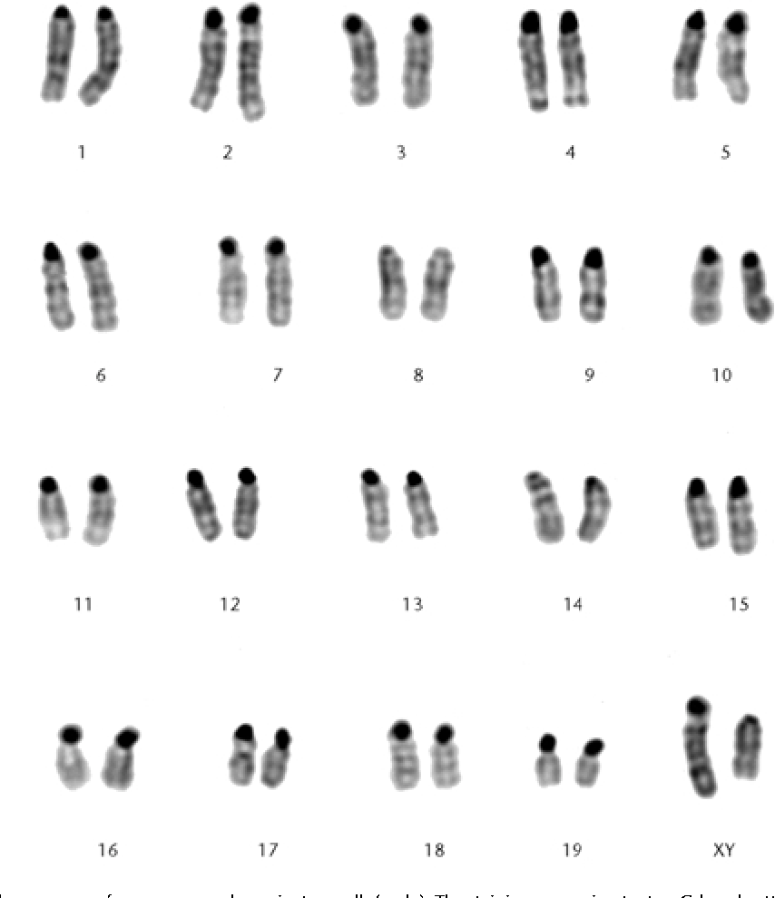 Karyotype Analysis Worksheet Answers - Escolagersonalvesgui