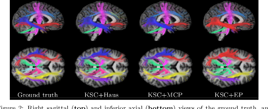 Figure 4 for White matter fiber analysis using kernel dictionary learning and sparsity priors