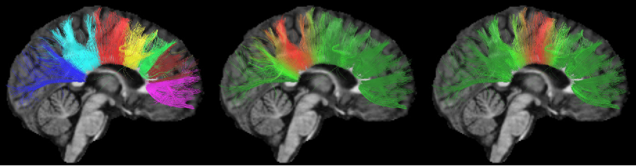 Figure 1 for White matter fiber analysis using kernel dictionary learning and sparsity priors