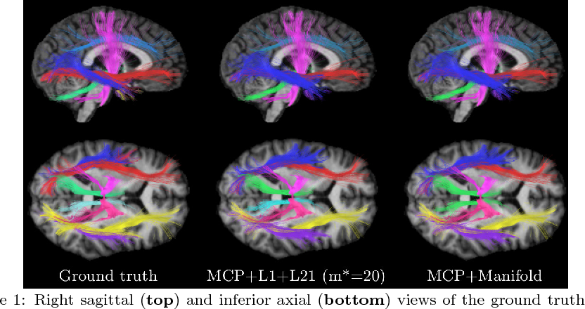 Figure 3 for White matter fiber analysis using kernel dictionary learning and sparsity priors
