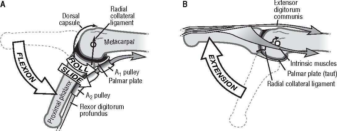 The unstable metacarpophalangeal joint in rheumatoid arthritis ...