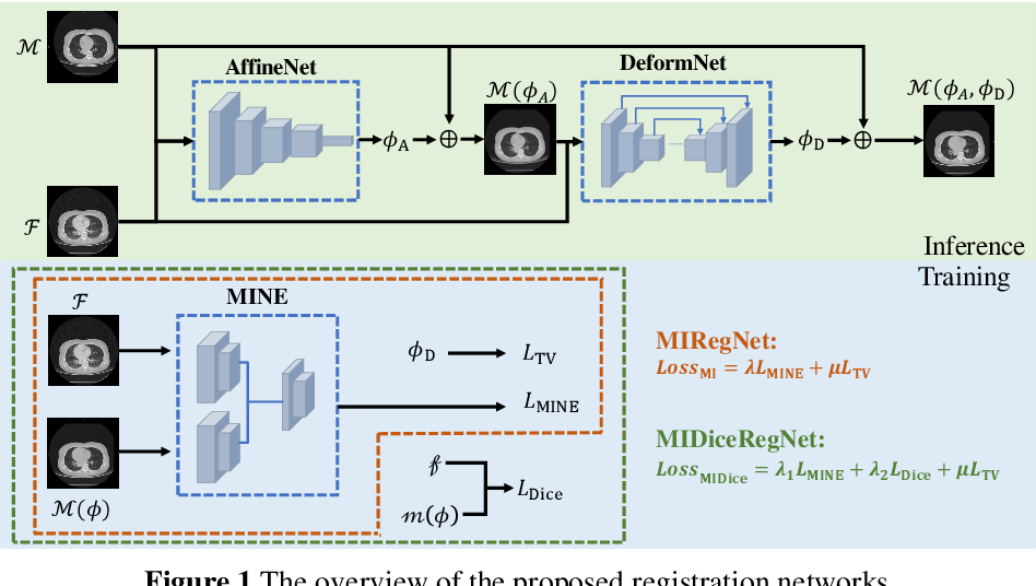 Figure 1 for Mutual information neural estimation in CNN-based end-to-end medical image registration