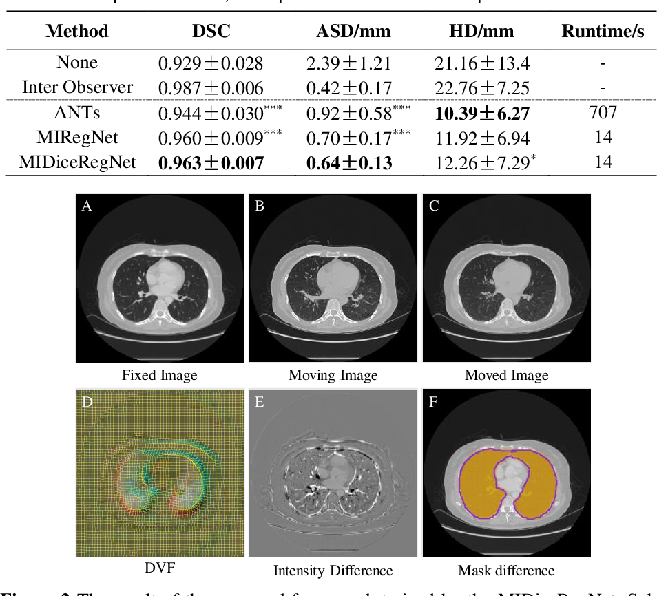 Figure 2 for Mutual information neural estimation in CNN-based end-to-end medical image registration