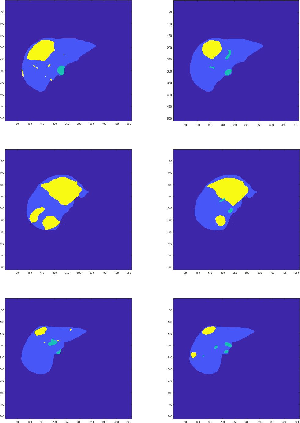 Figure 1 for A Time Series Graph Cut Image Segmentation Scheme for Liver Tumors