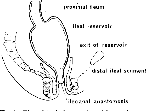 Restorative Proctocolectomy With Ileal Reservoir A