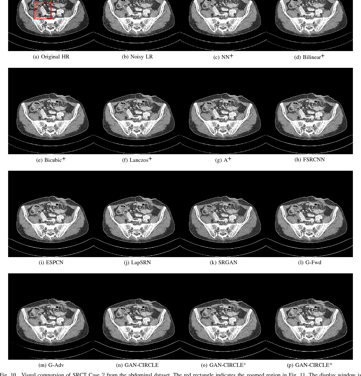 Figure 2 for CT Super-resolution GAN Constrained by the Identical, Residual, and Cycle Learning Ensemble(GAN-CIRCLE)