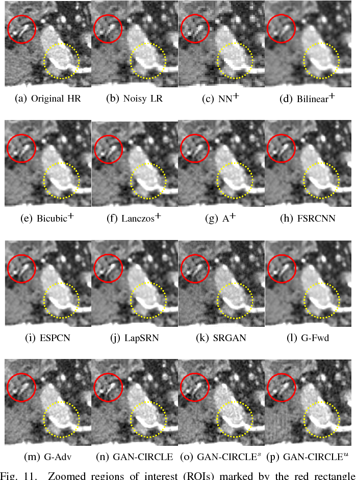 Figure 3 for CT Super-resolution GAN Constrained by the Identical, Residual, and Cycle Learning Ensemble(GAN-CIRCLE)
