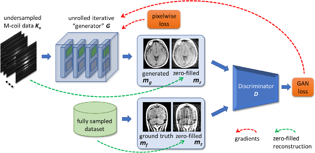 Figure 2 for Adaptive Gradient Balancing for UndersampledMRI Reconstruction and Image-to-Image Translation