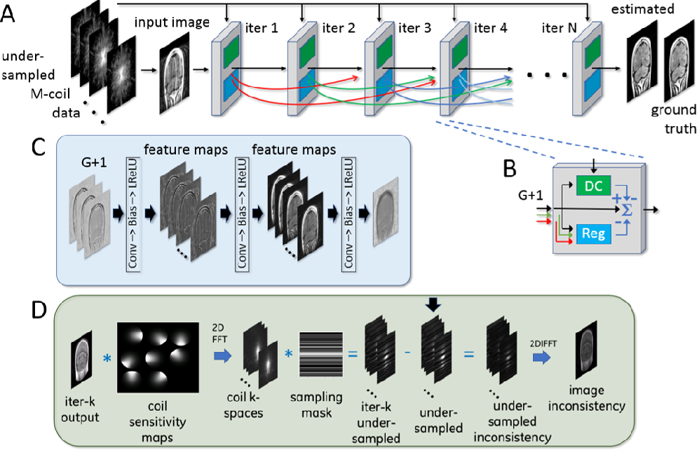 Figure 4 for Adaptive Gradient Balancing for UndersampledMRI Reconstruction and Image-to-Image Translation