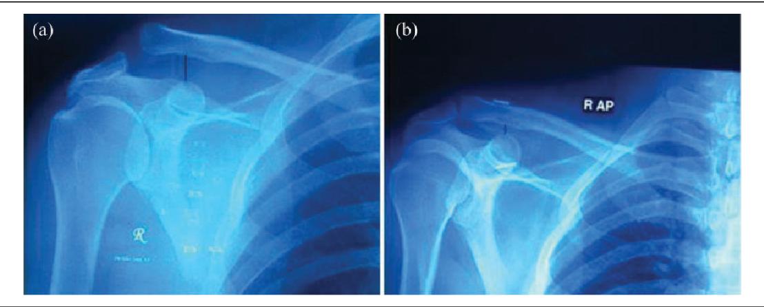 Arthroscopic fixation of acute acromioclavicular joint disruption ...