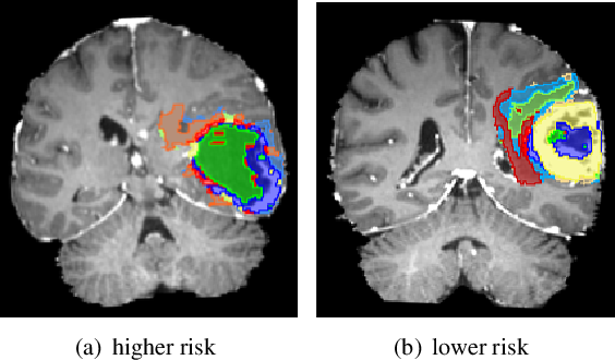 Figure 3 for Bayesian optimization assisted unsupervised learning for efficient intra-tumor partitioning in MRI and survival prediction for glioblastoma patients