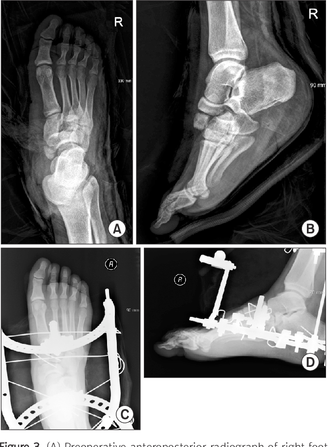 Figure 3 from Analysis of Clinical Outcome and Prognosis for Lisfranc Joint Fracture and ...