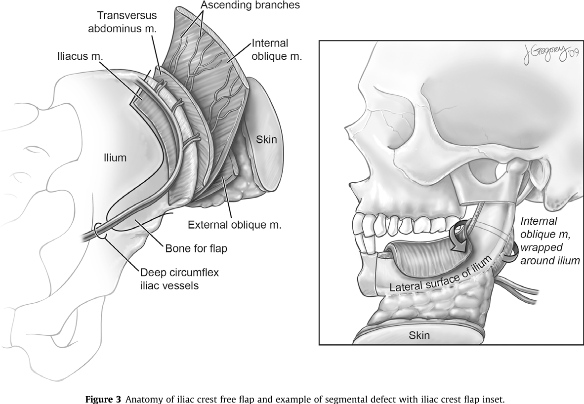 Figure 3 from Contemporary reconstruction of the mandible ...