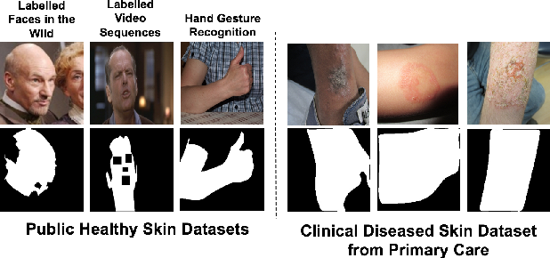 Figure 1 for Segmentation of both Diseased and Healthy Skin from Clinical Photographs in a Primary Care Setting