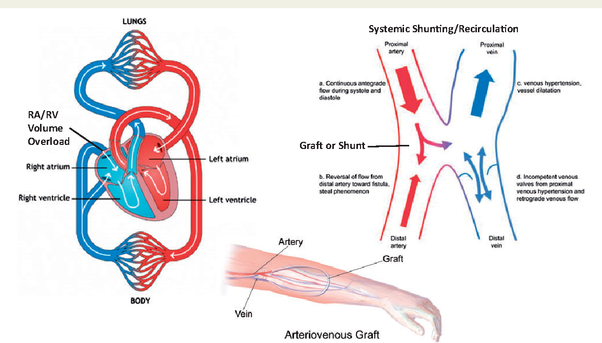 Figure 1 From Dialysis Fistulas And Heart Failure Semantic Scholar