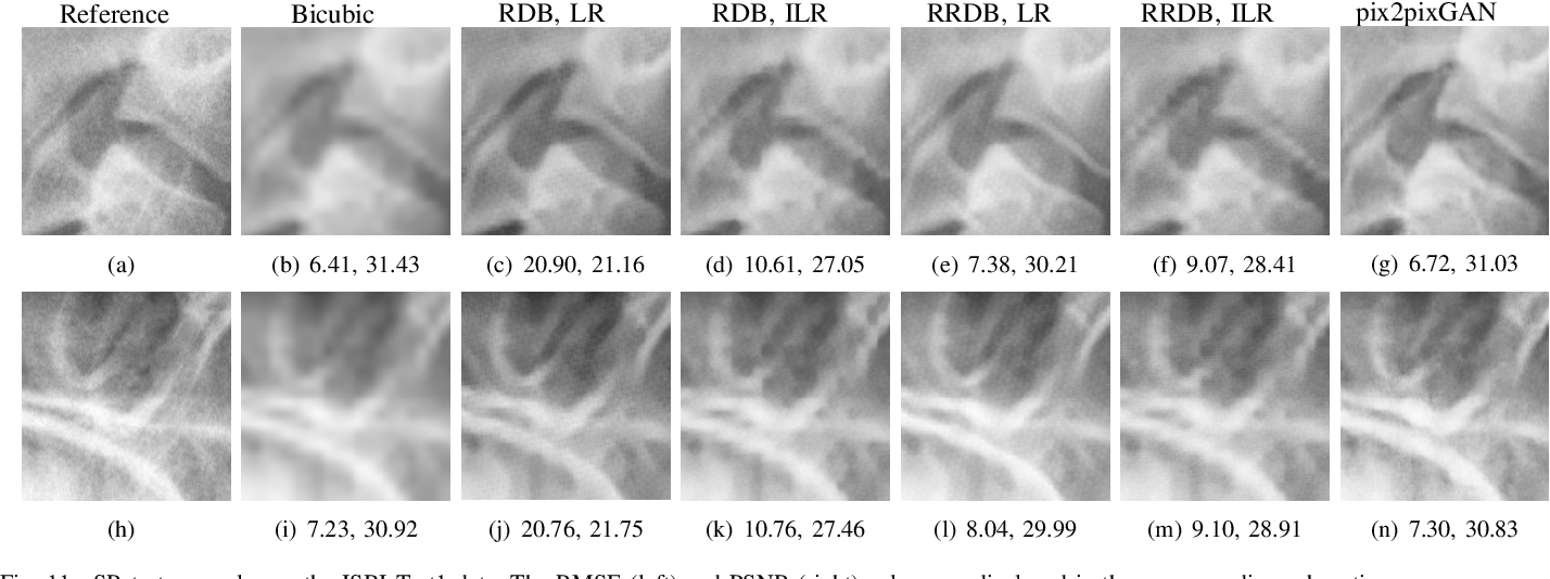 Figure 3 for Cephalogram Synthesis and Landmark Detection in Dental Cone-Beam CT Systems