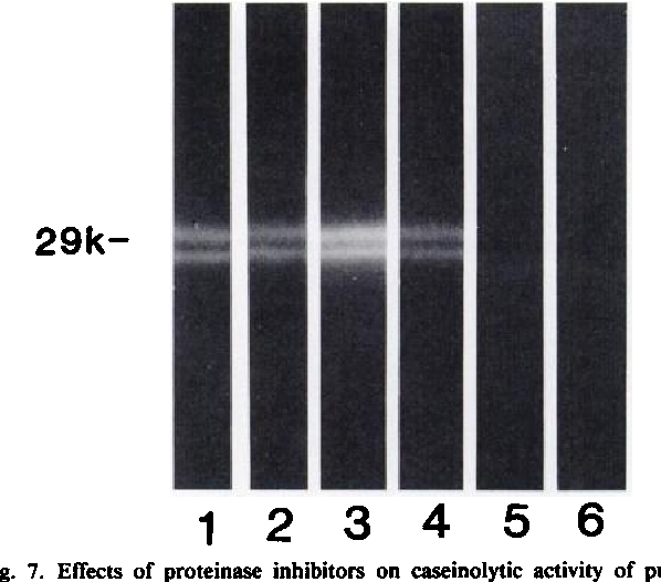 Fig. 7. Effects of proteinase inhibitors on caseinolytic activity of purified matrin. The purified proteinase was electrophoresed on a casein-containing gel, and the resultant gel was renatured and cut into strips, followed by incubation in the Ca2*-containing (lanes 1-5) or Ca:*-free (lane 6) reaction mixture with or without the indicated proteinase inhibitor. Lane I, no addition; lane 2, 5 mM DFP; lane 3, 1 mM PCMB; lane 4, 5 Mg/ml pepstatin; lane 5, 1 mM 1,10- phenanthroline; lane 6, no addition (—Ca2*). Ordinate, molecular weight in thousands. Other conditions are the same as given in the text. The apparent doublet of the caseinolytic activity is an artifact caused by the CBB staining of the enzyme protein at the center of the protein band.