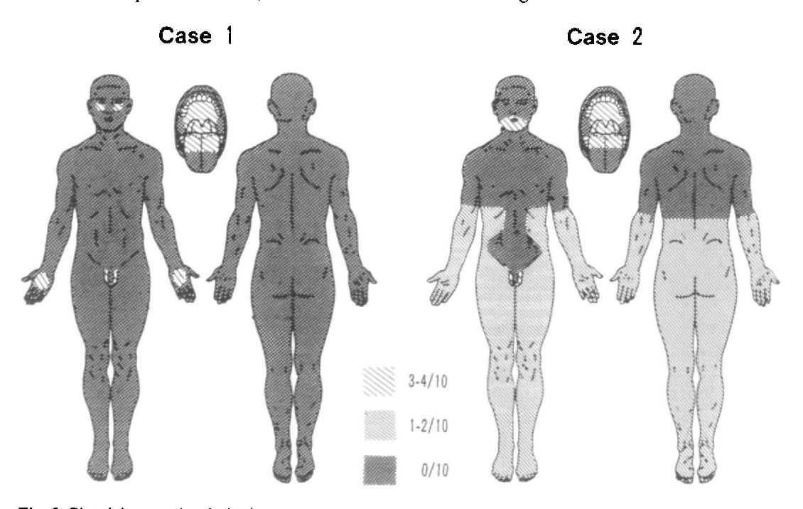 Großzügig Xiphoid Anatomie Zeitgenössisch - Anatomie Von ...