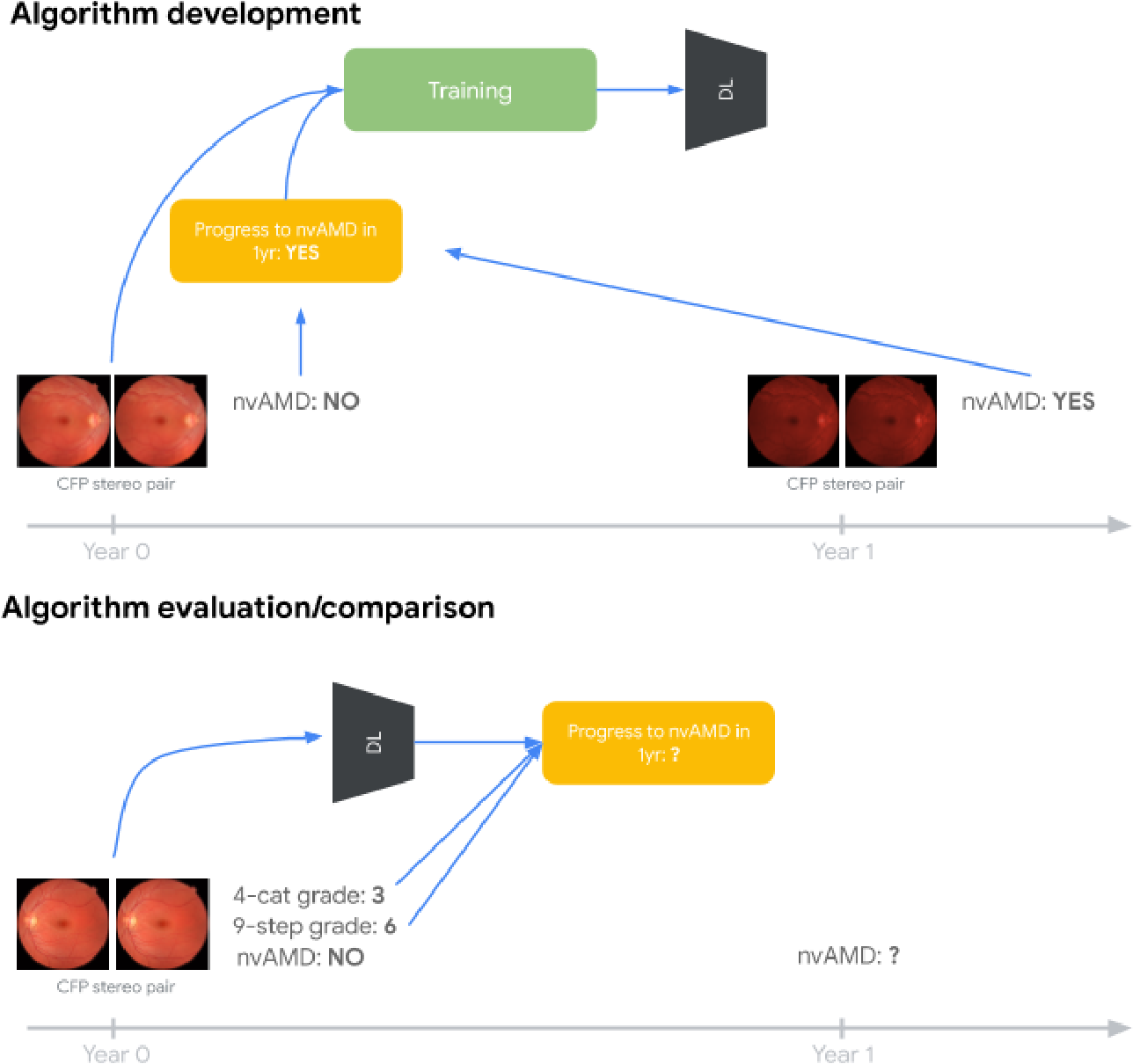Figure 2 for Predicting Progression of Age-related Macular Degeneration from Fundus Images using Deep Learning