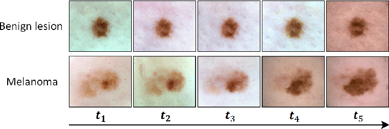 Figure 1 for Melanoma Diagnosis with Spatio-Temporal Feature Learning on Sequential Dermoscopic Images