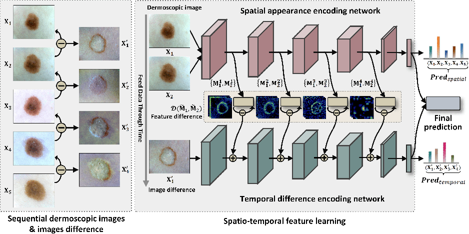 Figure 3 for Melanoma Diagnosis with Spatio-Temporal Feature Learning on Sequential Dermoscopic Images