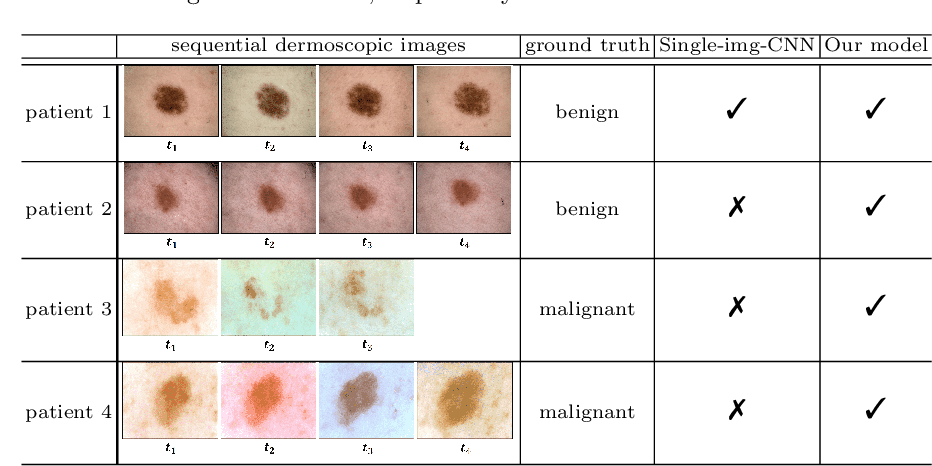 Figure 4 for Melanoma Diagnosis with Spatio-Temporal Feature Learning on Sequential Dermoscopic Images