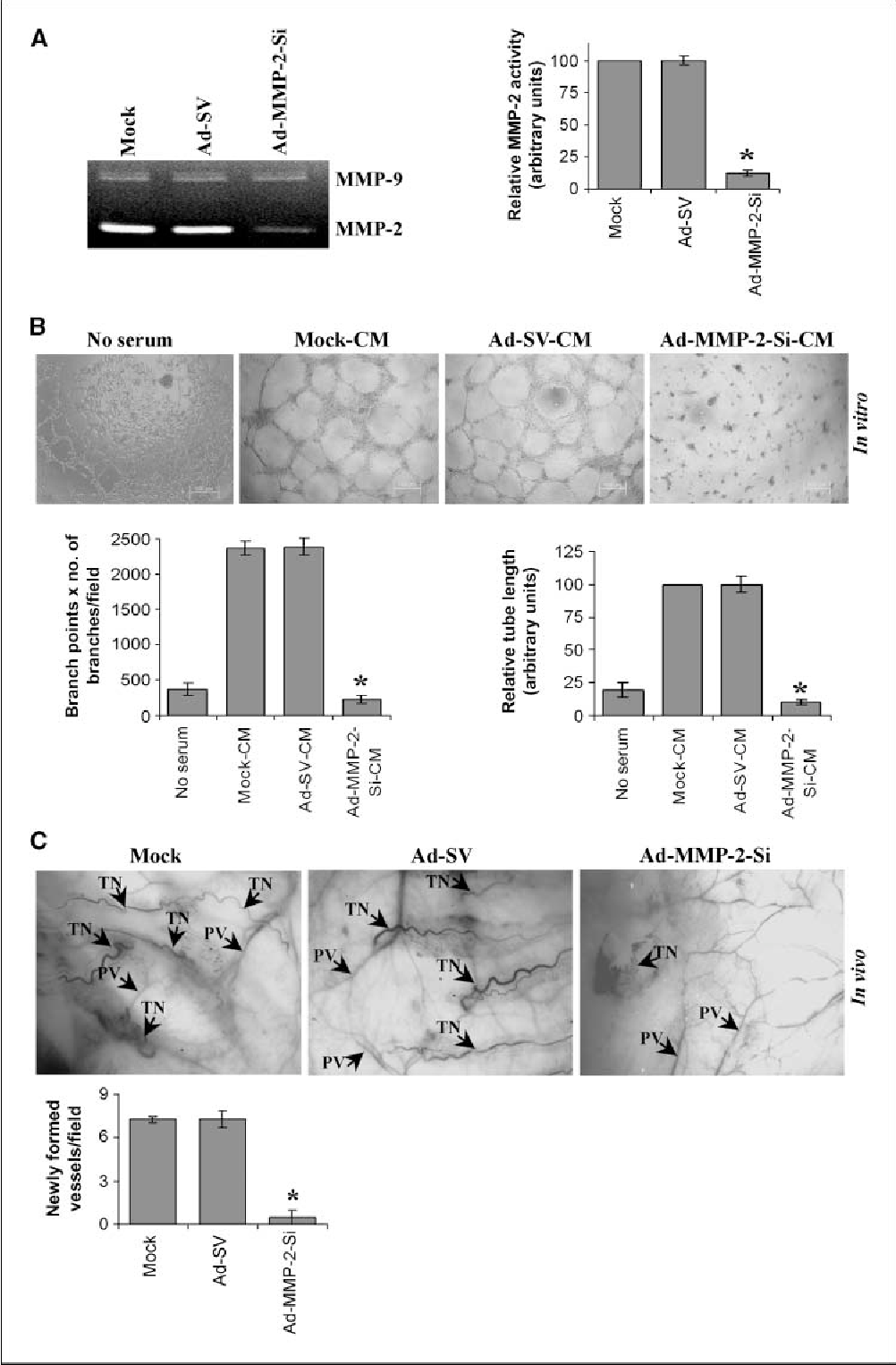 Figure 1. Ad-MMP-2-Si inhibits tumor-induced angiogenesis. A and B, A549 cells were infected as described in Materials and Methods. Briefly, A549 cells were infected with 100 MOI of either Ad-SV or Ad-MMP-2-Si, medium was aspirated after 36 h of incubation and 3 mL of serum-free medium were added, and cells were incubated overnight. A, gelatin zymographic analysis of TCM. The band intensities of MMP-2 activity were quantified by densitometry and normalized with the intensity of the mock-CM band. Columns, mean of triplicate experiments; bars, SE; *, P < 0.01, significant difference from mock-CM. B, in vitro angiogenesis (top ): The TCM was added into 96-well plates, which were coated with Matrigel and preseeded with HMEC (2 104 cells per well). After overnight incubation at 37jC, cells were observed under the bright field microscope for formation of capillary-like structures. Bottom, the degree of angiogenic induction by Mock-CM, Ad-SV-CM, and Ad-MMP-2-Si-CM was quantified for the numerical value of the product of the relative capillary length and number of branch points per field. The capillary length and number of branch points were reduced drastically in HMECs grown in CM from Ad-MMP-2-Si–infected A549 cells. Columns, mean of quadruplicate experiments; bars, SE; *, P < 0.01, significant difference from mock-CM. C, in vivo angiogenic assay using the dorsal skin fold model as described in Materials and Methods. Briefly, the animals were implanted with diffusion chambers containing mock, 100 MOI of either Ad-SV or Ad-MMP-2-Si– infected cells in a dorsal cavity. Ten days after implantation, the animals were sacrificed and the skin fold covering the diffusion chamber was observed under bright field light microscope for the presence of tumor-induced neovasculature (TN ) and preexisting vasculature (PV ) and photographed (top ). The mean number of neovasculature (>20 Am) per field was quantified (bottom ). Columns, mean of quadruplicate experiments; bars, SE; *, P < 0.01