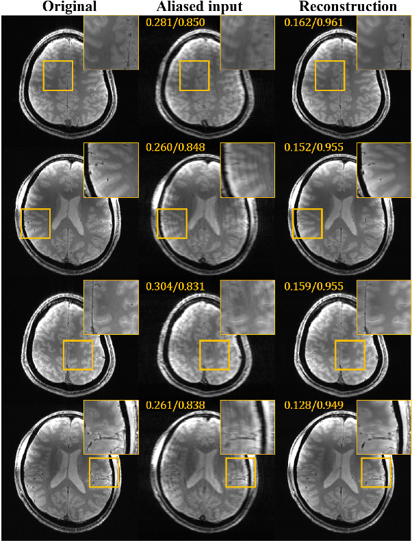 Figure 2 for Deep Residual Learning for Accelerated MRI using Magnitude and Phase Networks