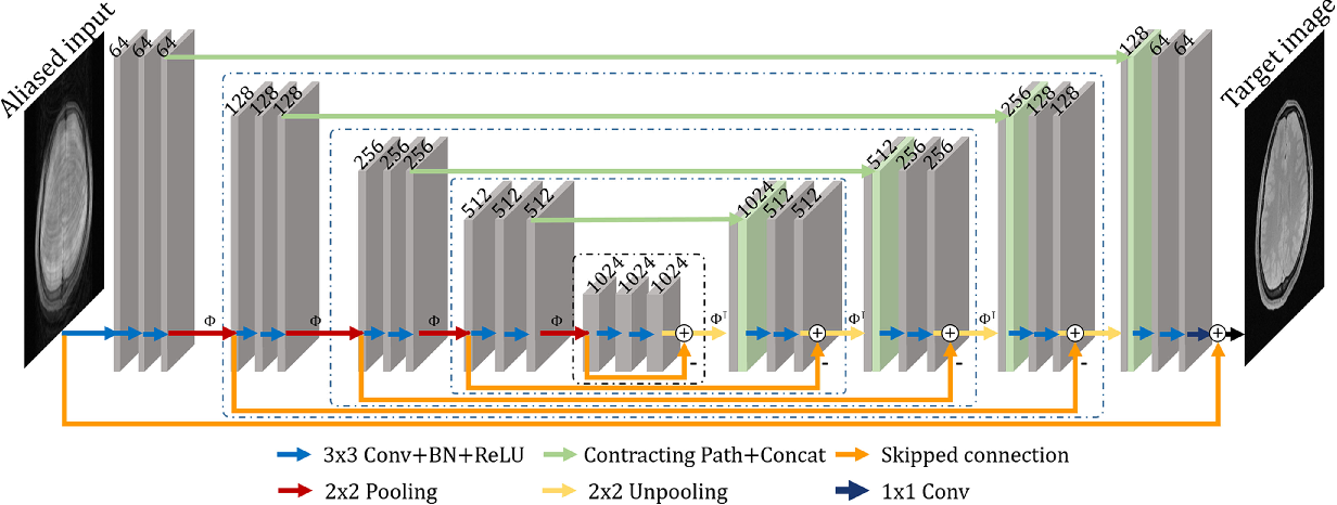 Figure 1 for Deep Residual Learning for Accelerated MRI using Magnitude and Phase Networks