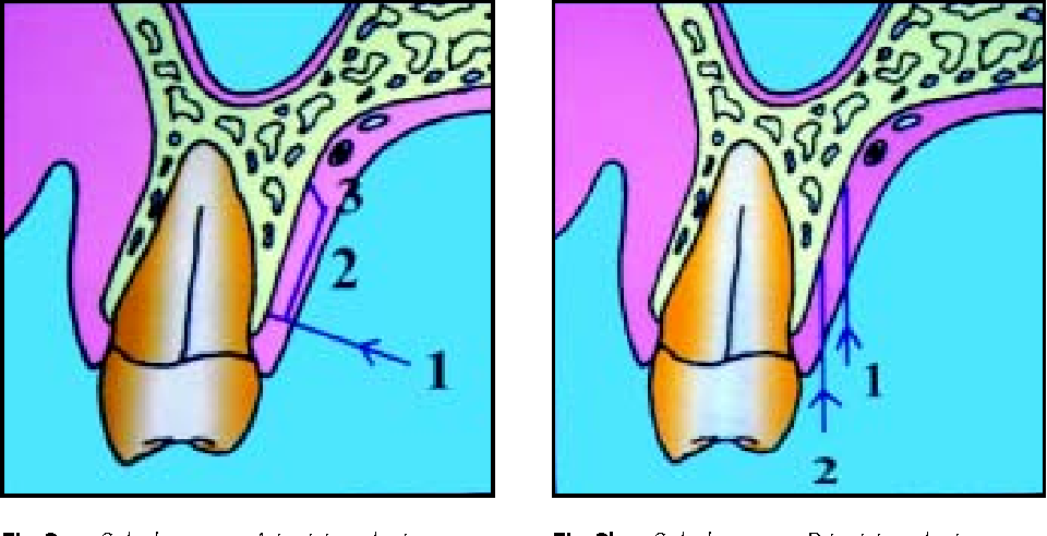 PDF] Connective tissue graft: a classification for incision design