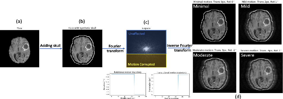 Figure 3 for Assessing Lesion Segmentation Bias of Neural Networks on Motion Corrupted Brain MRI