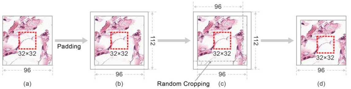 Figure 3 for Boosted EfficientNet: Detection of Lymph Node Metastases in Breast Cancer Using Convolutional Neural Network