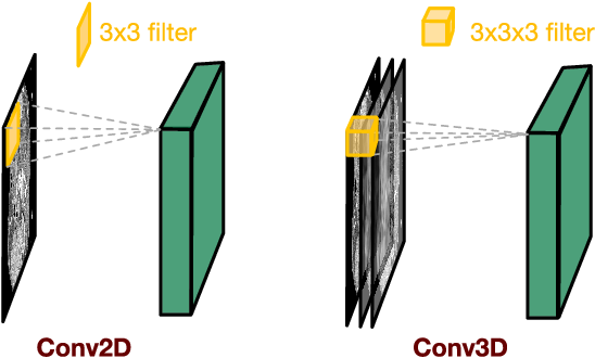 Figure 2 for 3D Convolutional Encoder-Decoder Network for Low-Dose CT via Transfer Learning from a 2D Trained Network