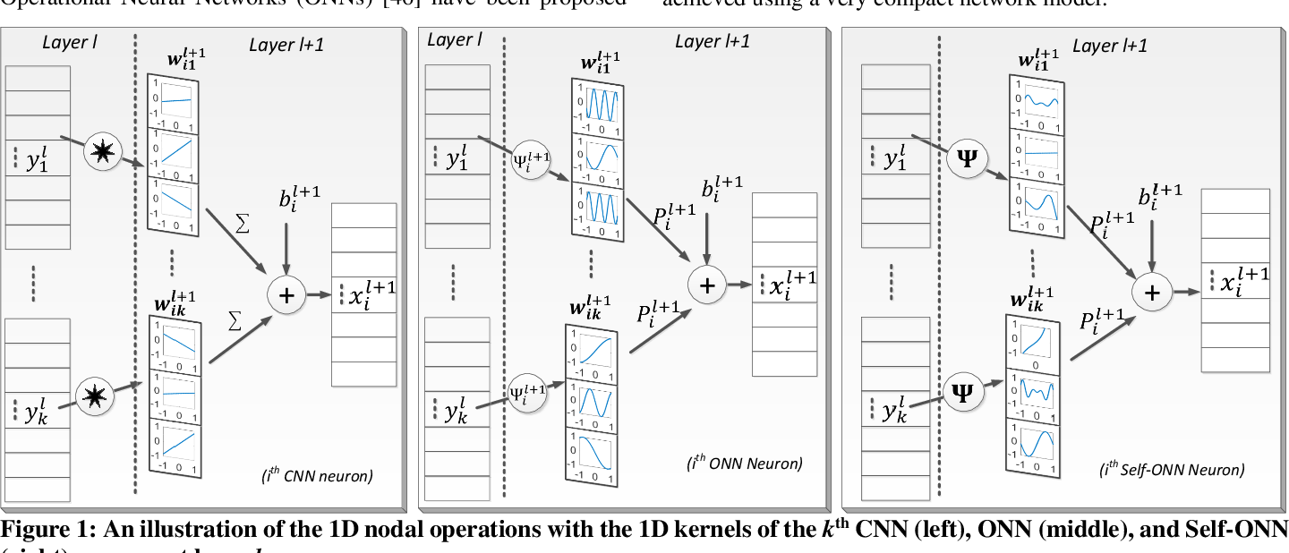 Figure 1 for Real-Time Patient-Specific ECG Classification by 1D Self-Operational Neural Networks