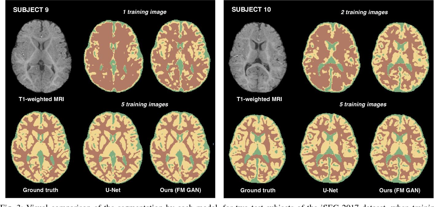 Figure 3 for Few-shot 3D Multi-modal Medical Image Segmentation using Generative Adversarial Learning