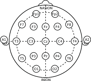 Deep Convolutional Autoencoder For Eeg Noise Filtering